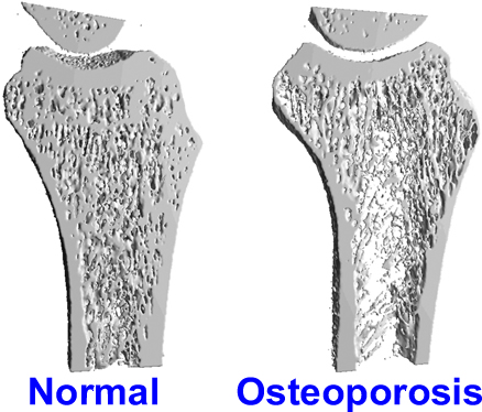Men far less likely to prevent, screen for osteoporosis