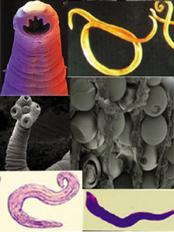 Parasites and their Cysts