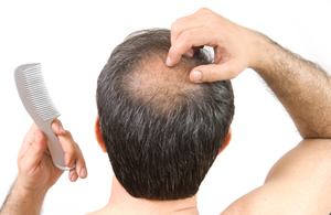 Male pattern baldness is partly the result of genetics and the aging process but can also be affected by nutrient deficiencies throughout the body.