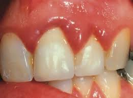 Gingivitis - Gum Inflammation